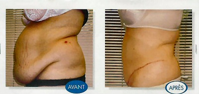 tummy tuck before and after 2